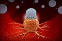 Adicionar imunoterapia à radioterapia pode melhorar a sobrevida global em pacientes com metástases cerebrais
