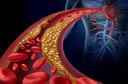 Partículas de colesterol HDL estão ligadas a inflamação reduzida e menor risco de doença cardiovascular